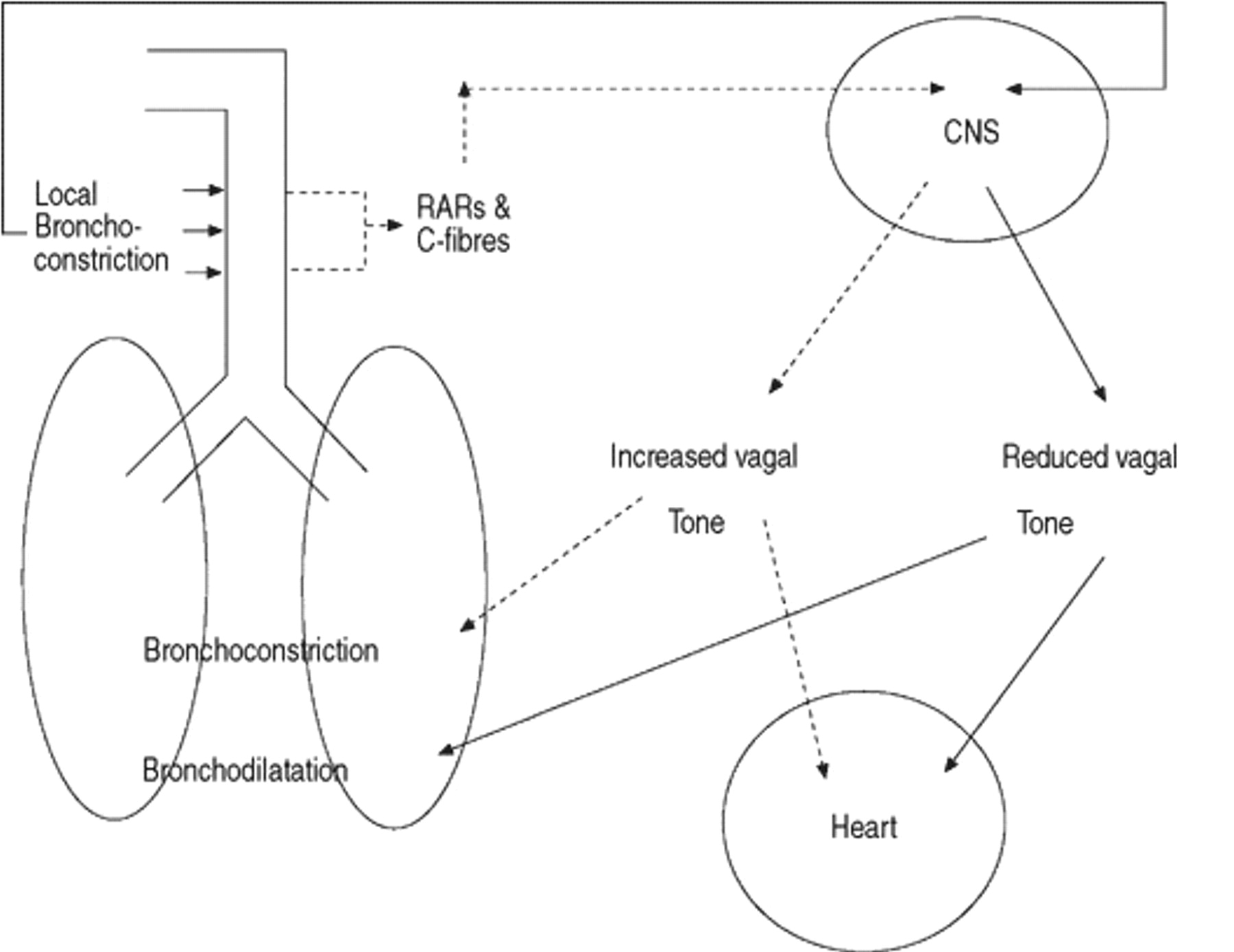 The effect of sulphur dioxide exposure on indices of heart