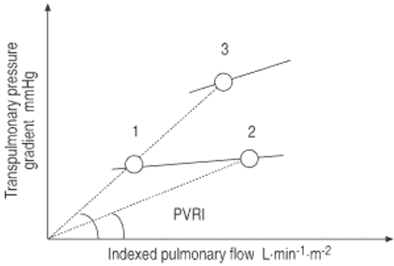 Haemodynamic Evaluation Of Pulmonary Hypertension European Current Is Read By Convent To Be Flowing In The Opposite Direction Download Figure