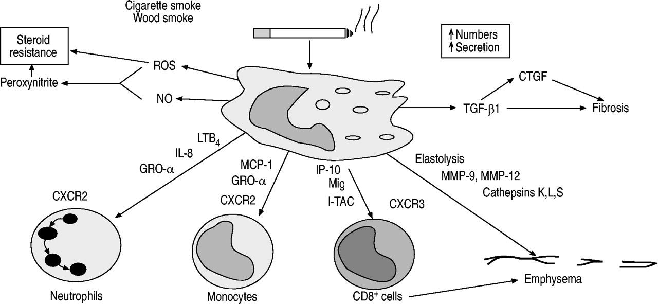 Chronic obstructive pulmonary disease: molecular and