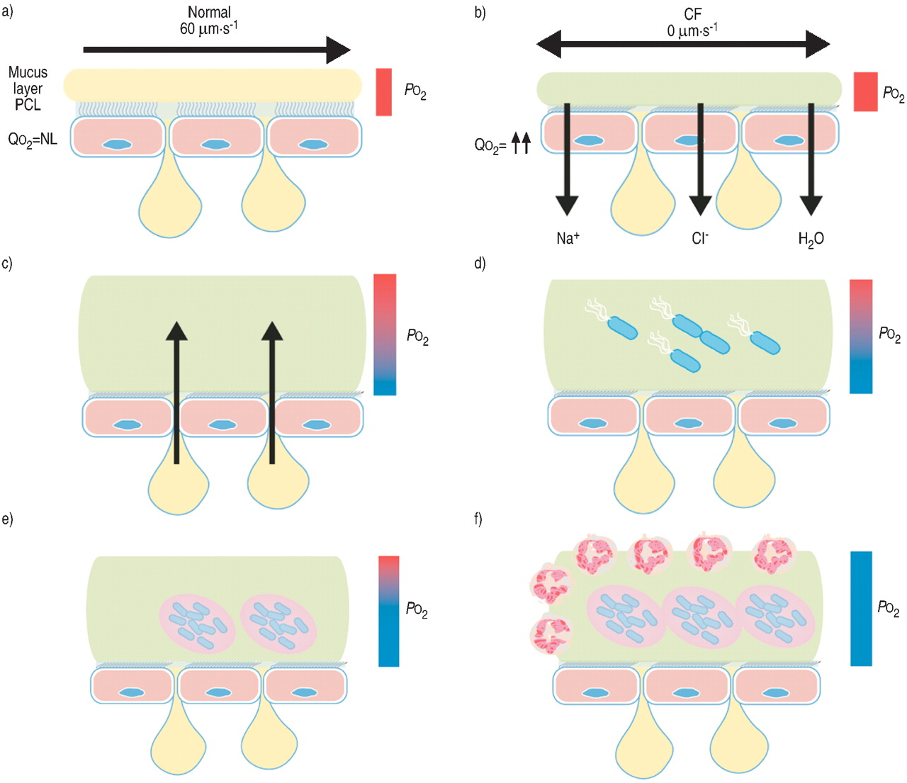 New Concepts Of The Pathogenesis Cystic Fibrosis Lung Disease