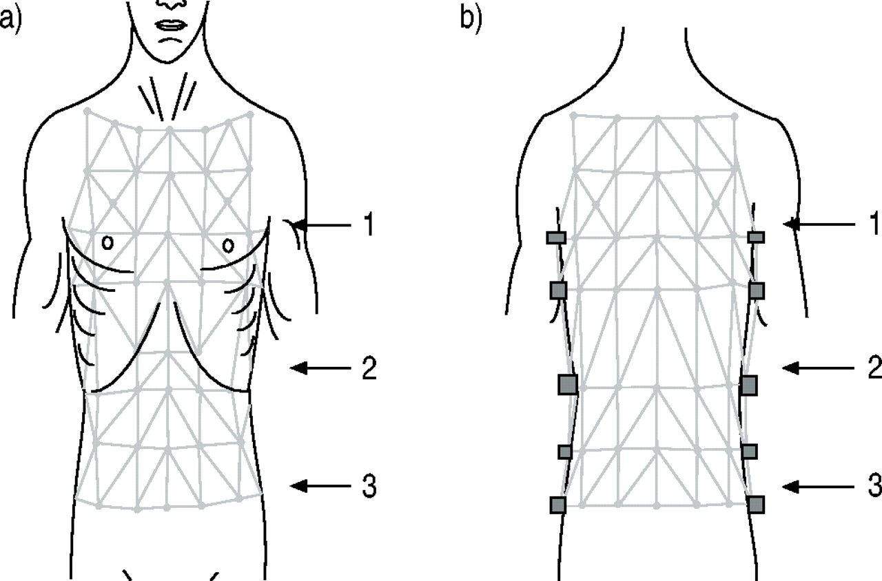 Chest Wall Kinematics And Respiratory Muscle Action In Ankylosing