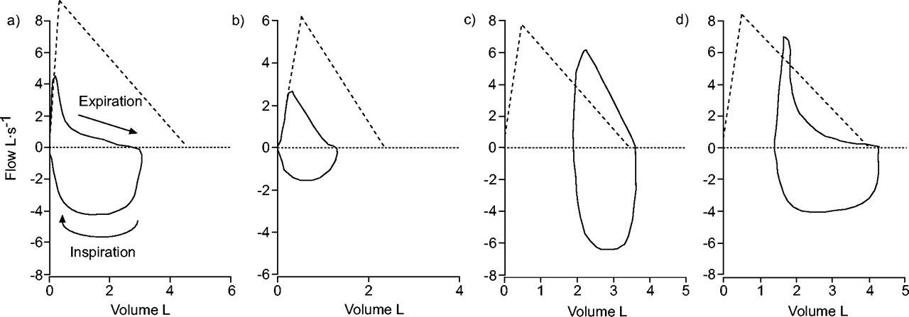 interpretative strategies for lung function tests