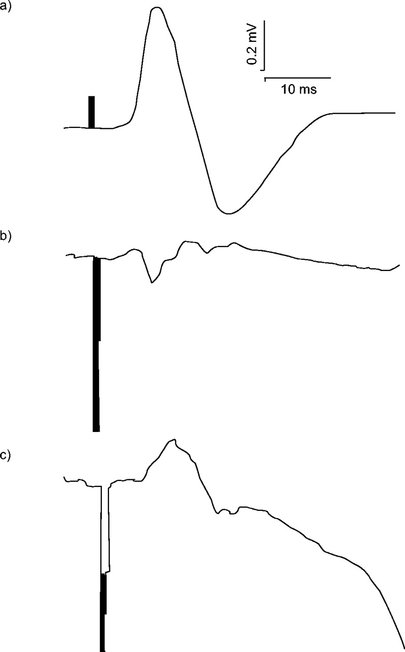 Diaphragm electromyograms recorded from multiple surface