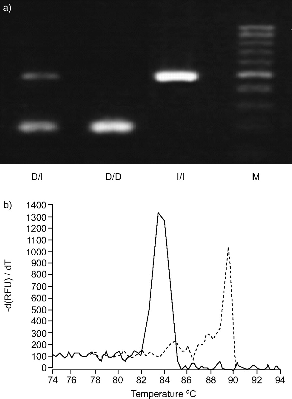 Genotype-corrected reference values for serum angiotensin