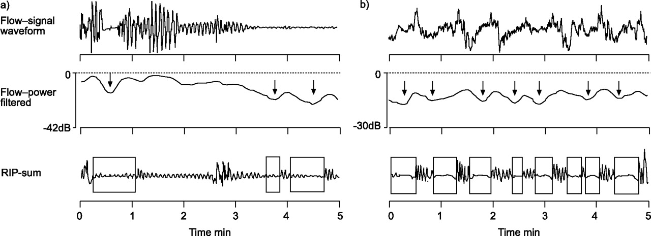 Automatic detection of sleep-disordered breathing from a