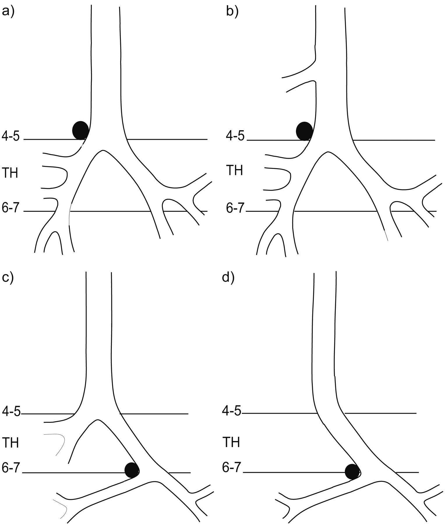 Comparison of imaging techniques in the diagnosis of bridging ...