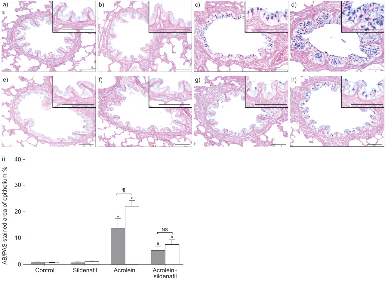 Effect of sildenafil on acrolein-induced airway inflammation