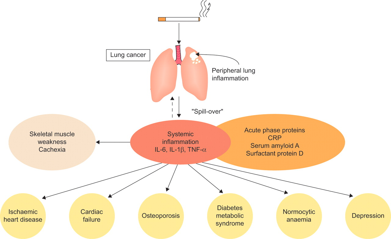 end stages of copd and chf relationship