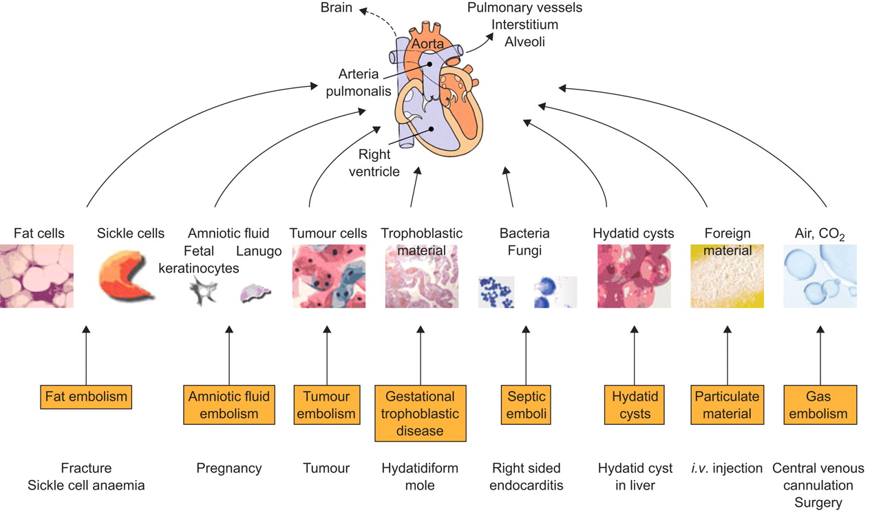 Nonthrombotic Pulmonary Embolism