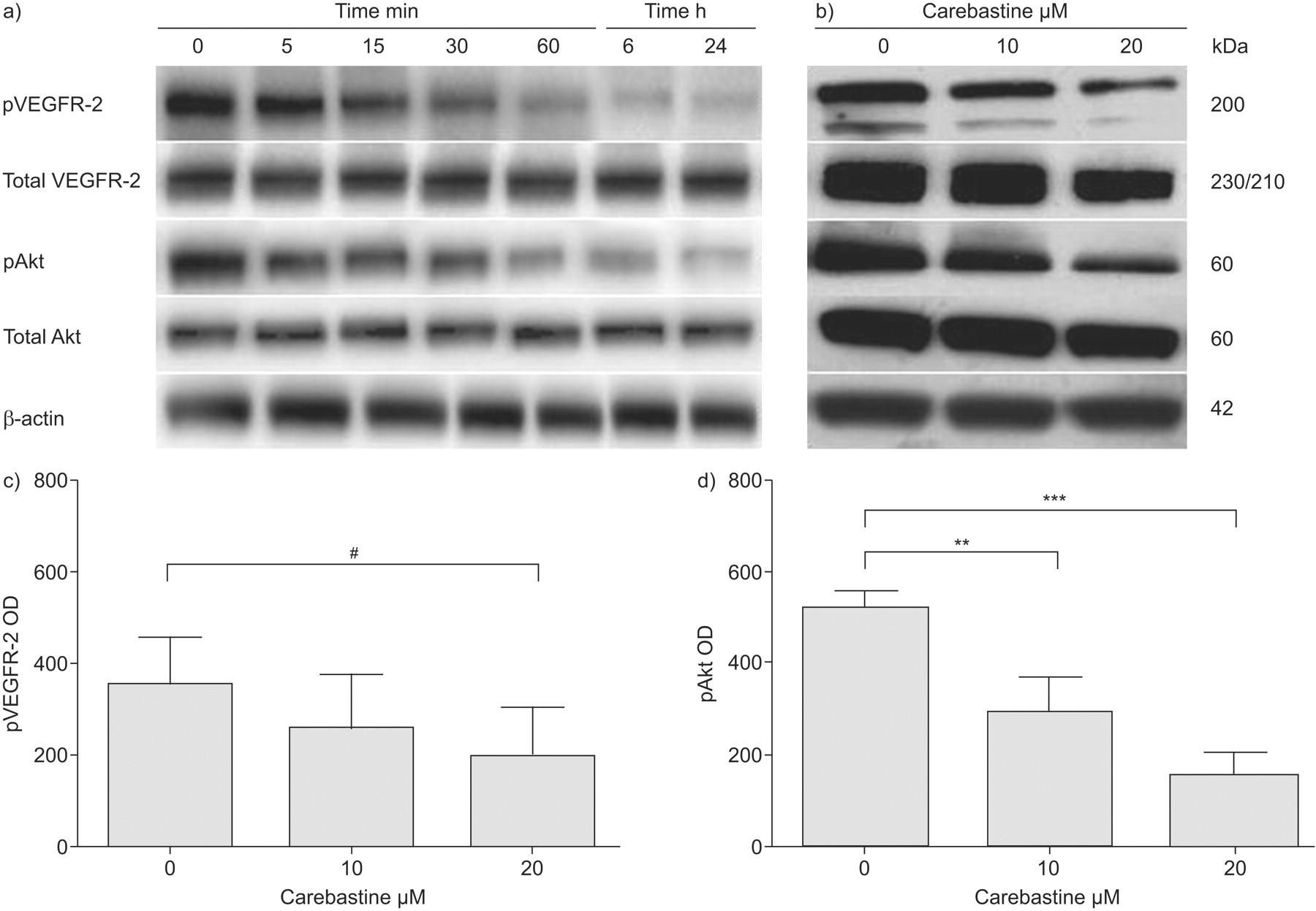 Anti-angiogenic activity of carebastine: a plausible
