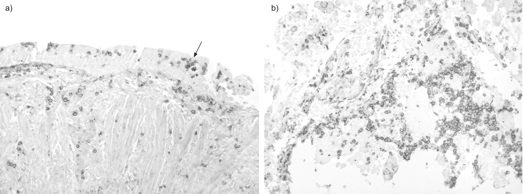 The role of chemokine receptors in acute lung allograft