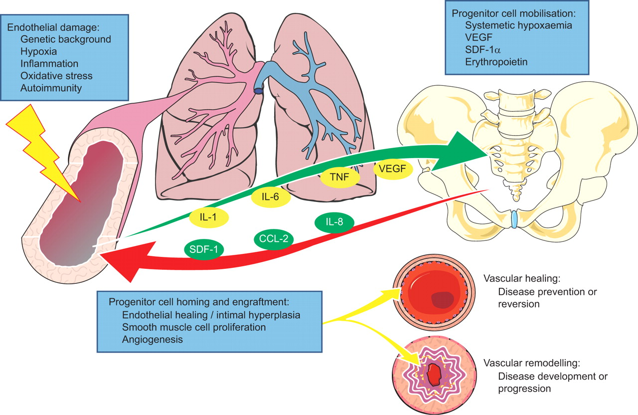 homeostatic imbalance of hypertension Homeostatic imbalances: hypertension essay sample my name is jennifer, and i am the education nurse here at itt internal medicine your doctor asked me to explain to you your diagnosis of hypertension.