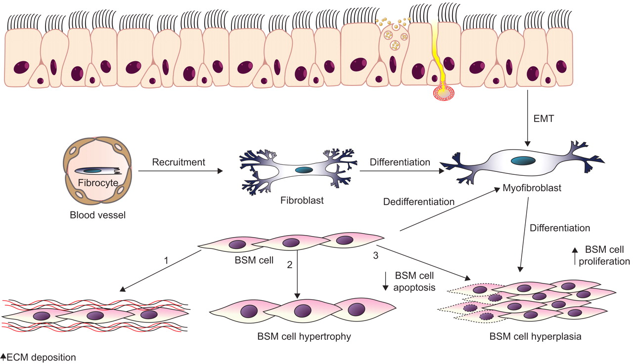 Pathophysiology Of Bronchial Smooth Muscle Remodelling In Asthma