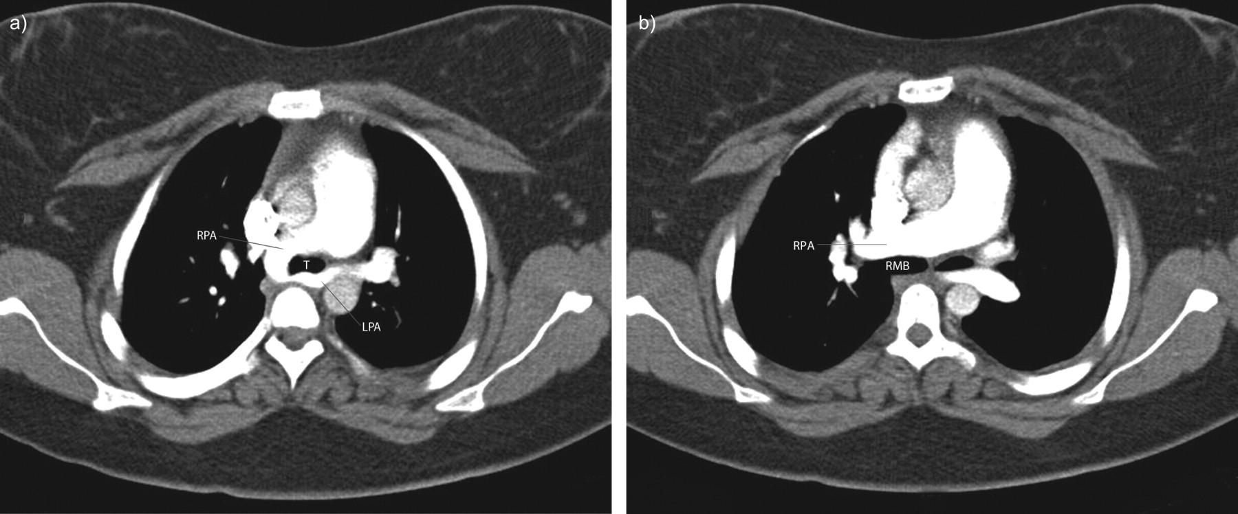 Congenital Rubella Syndrome And Left Pulmonary Artery Sling