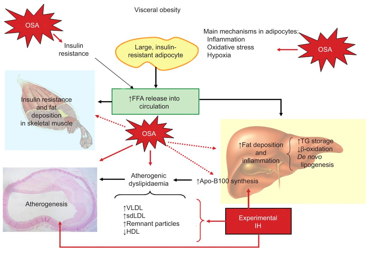 Adipose Tissue In Obesity And Obstructive Sleep Apnoea European Respiratory Society