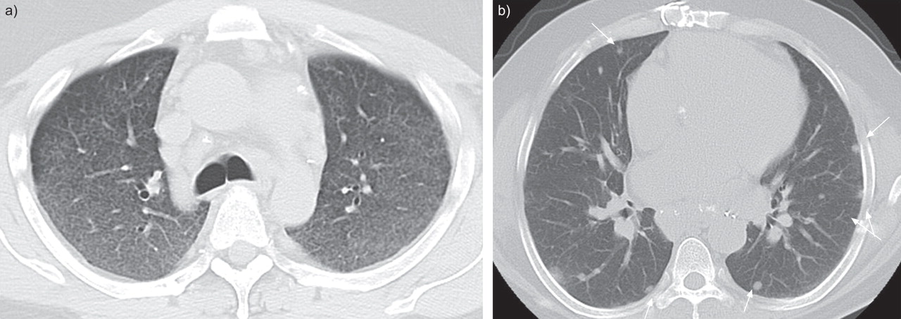 Management of end-stage sarcoidosis: pulmonary hypertension and ...