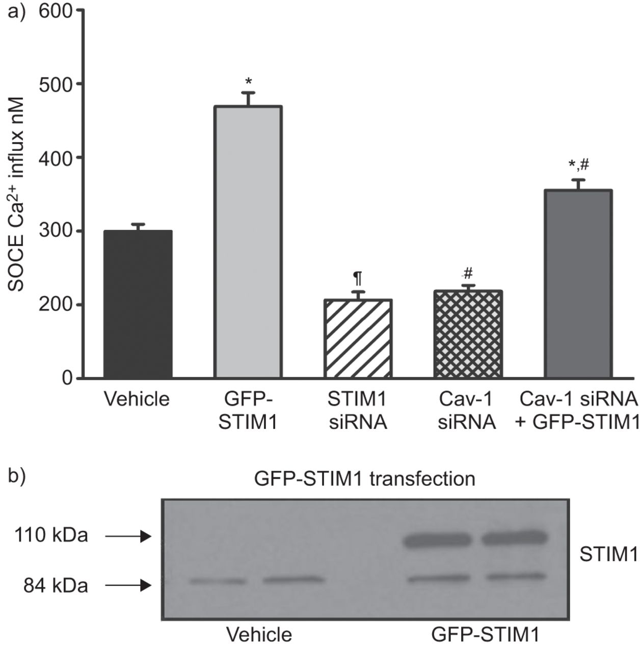 caveolin-1 regulation of store-operated ca2+ influx in human, Muscles