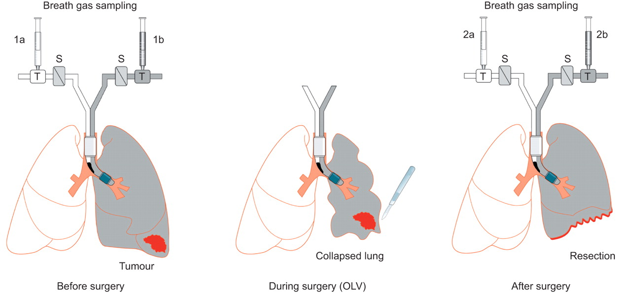 breath analysis during one-lung ventilation in cancer patients ... ventilation diagram lungs lung ventilation graph european respiratory journal - european respiratory society