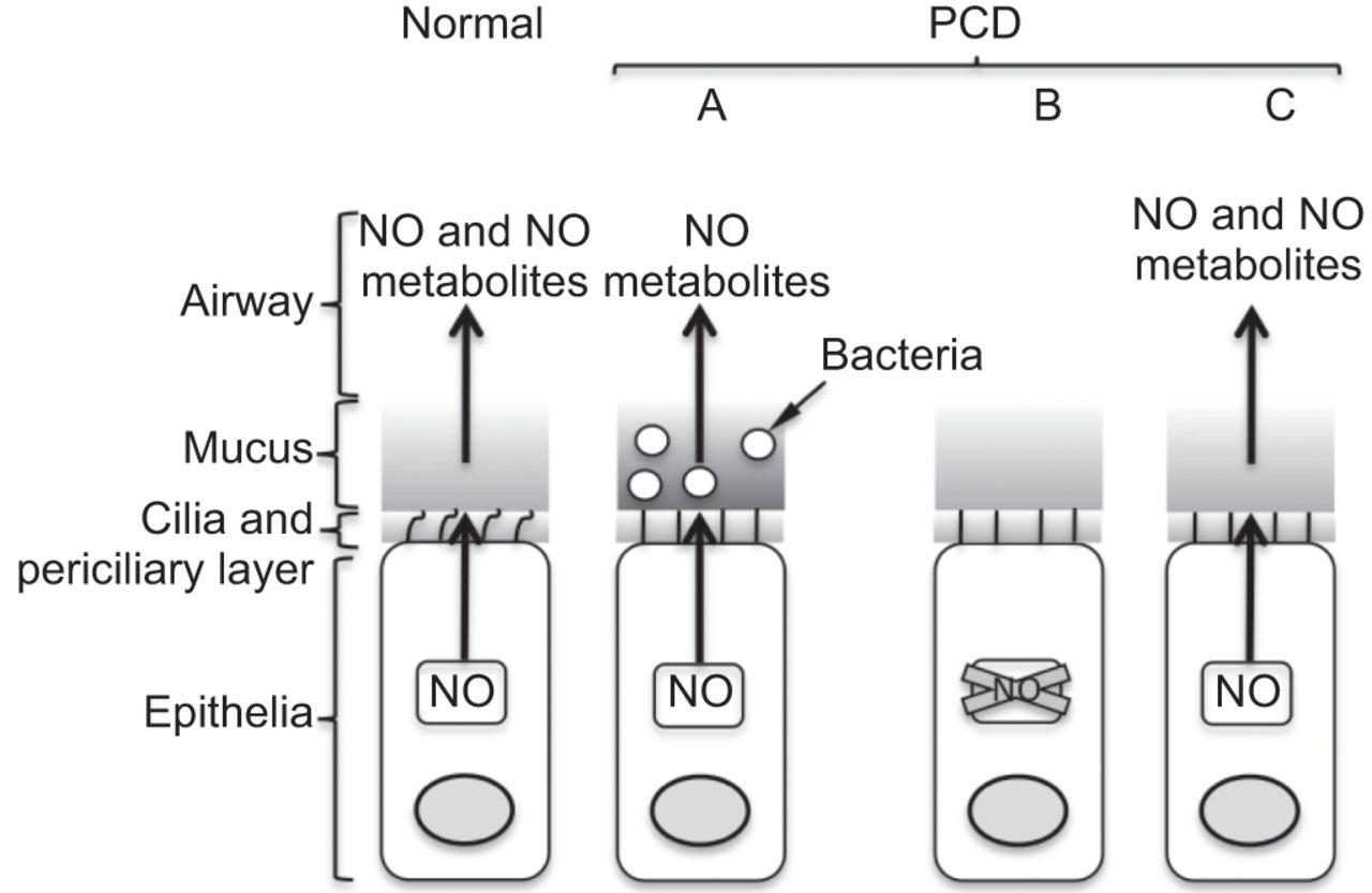 Nitric Oxide In Primary Ciliary Dyskinesia European Respiratory