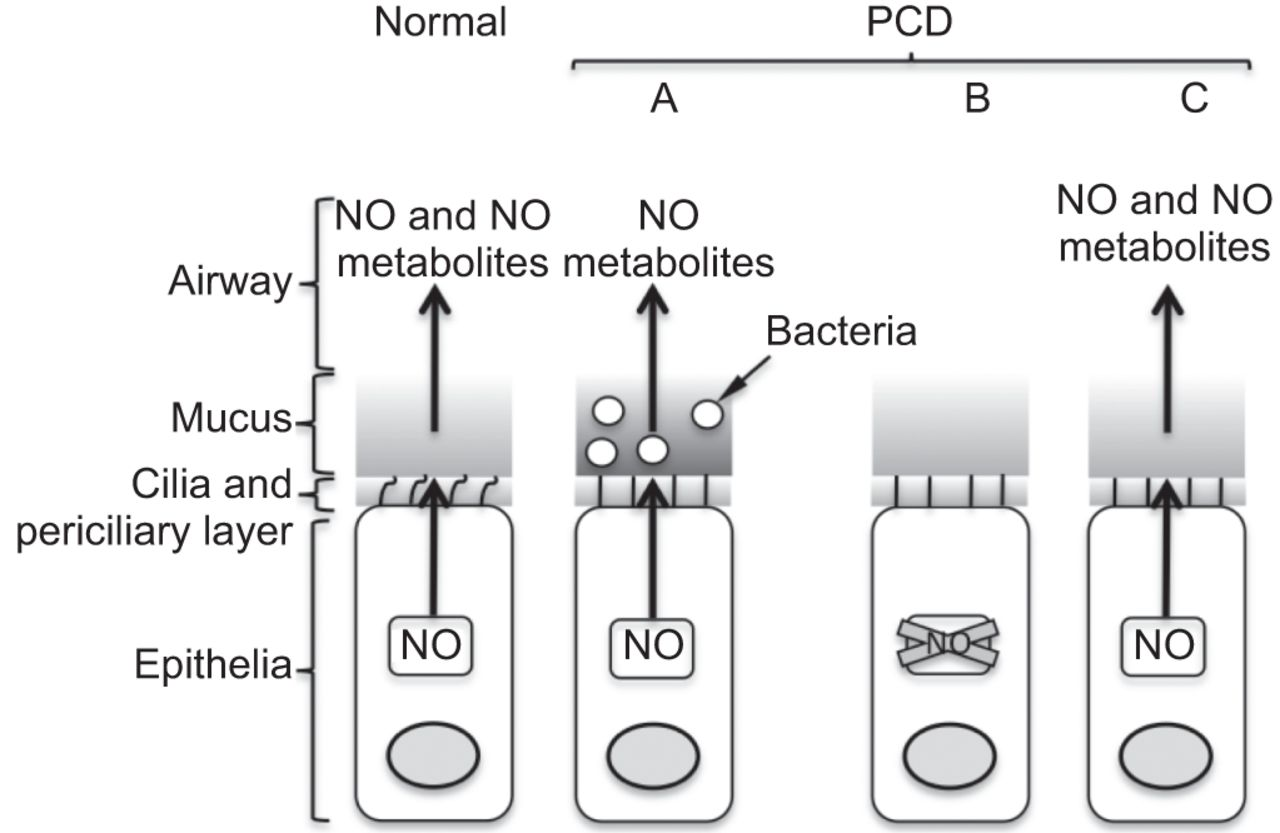 Nitric oxide in primary ciliary dyskinesia   European Respiratory ...