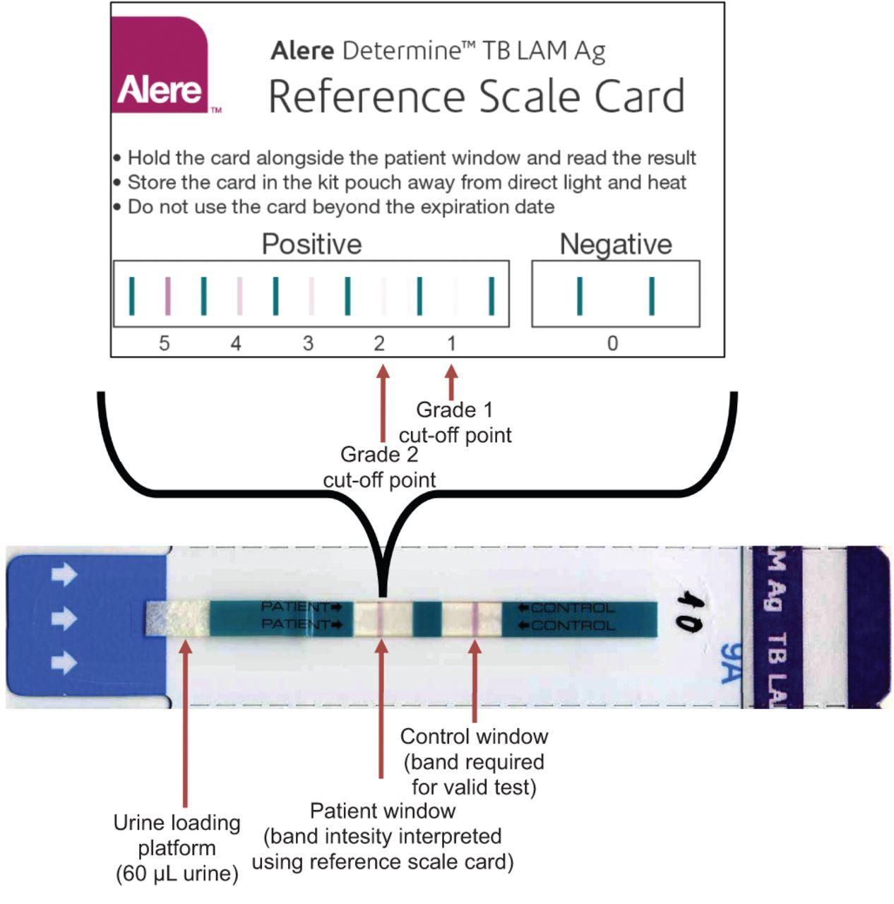 Diagnostic accuracy of a urine lipoarabinomannan strip-test