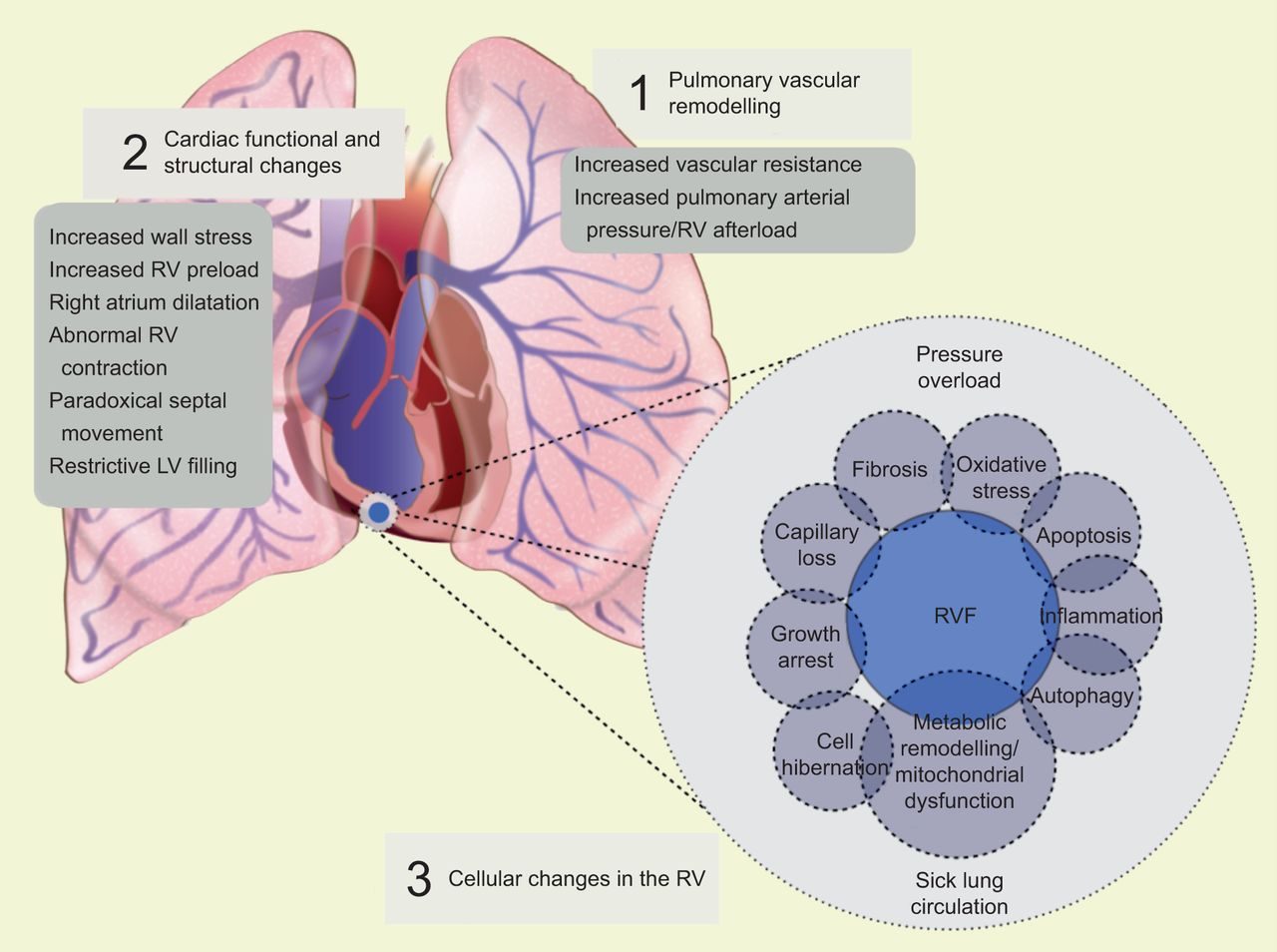 Pathobiology Of Pulmonary Arterial Hypertension And Right