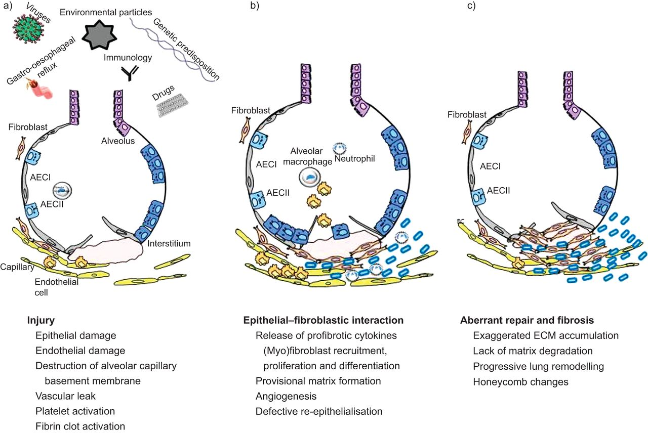 The Pathogenesis Of Pulmonary Fibrosis A Moving Target