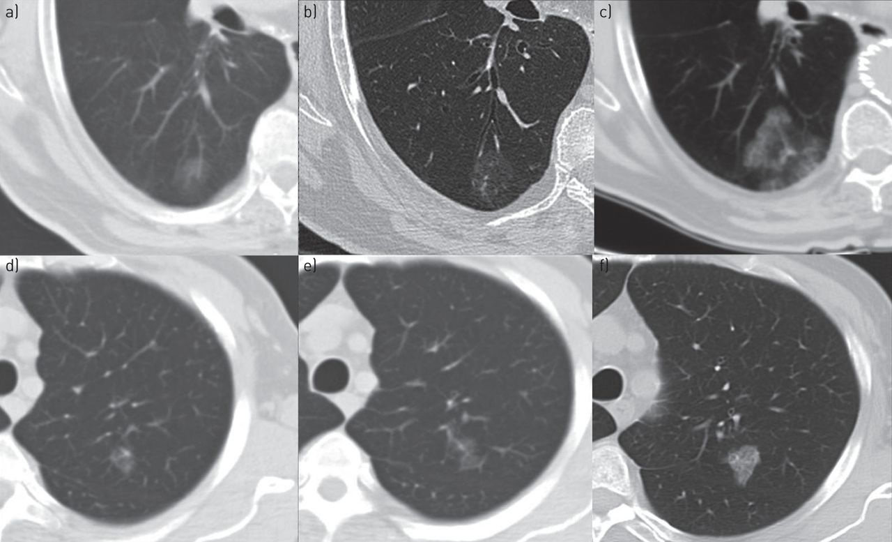 Slow-growing lung cancer as an emerging entity: from