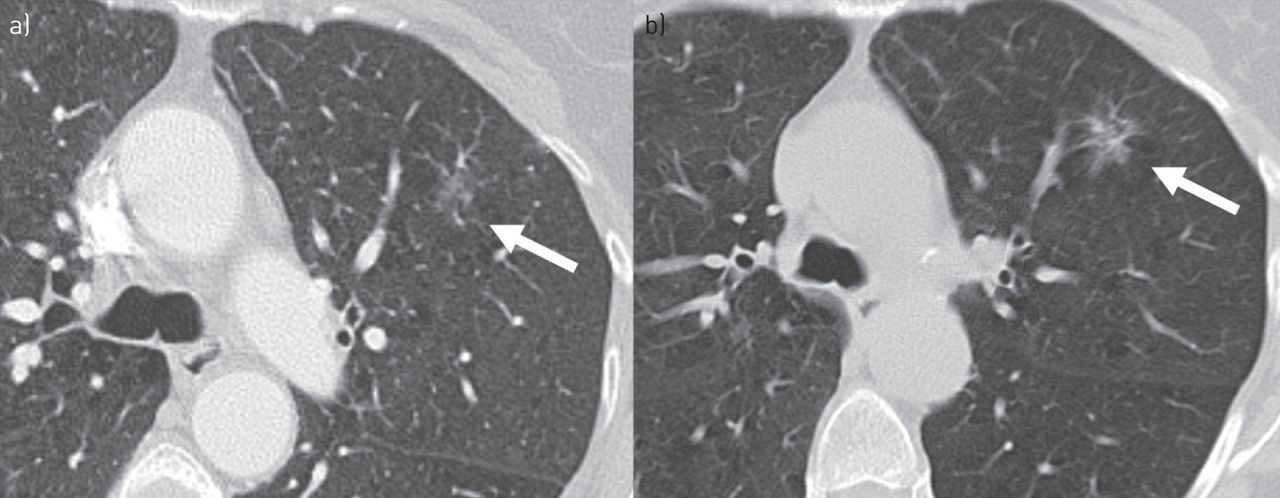 Slow-growing lung cancer as an emerging entity: from screening to ...