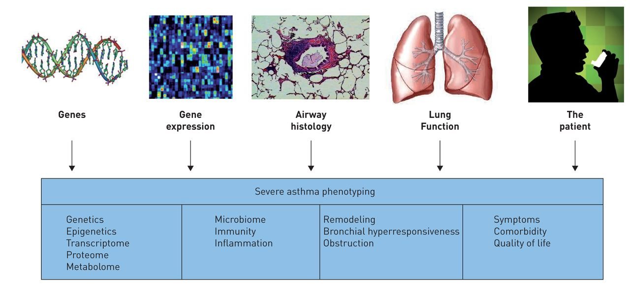 what is asthma define