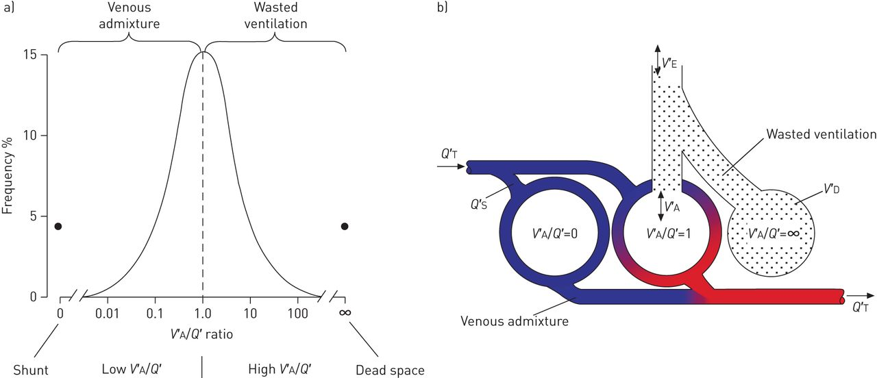 Gas exchange and ventilationperfusion relationships in the lung download figure ccuart Images