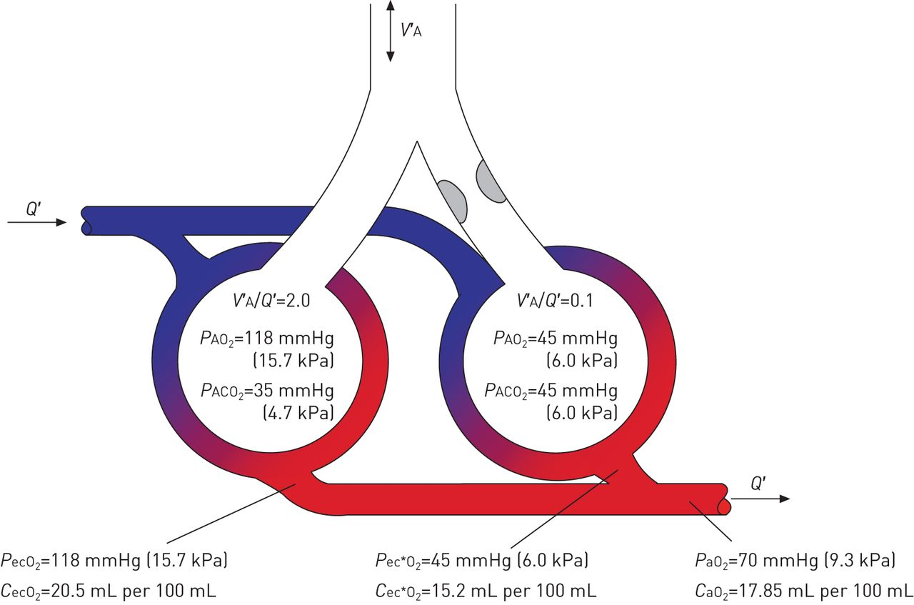 gas exchange and ventilation�perfusion relationships in