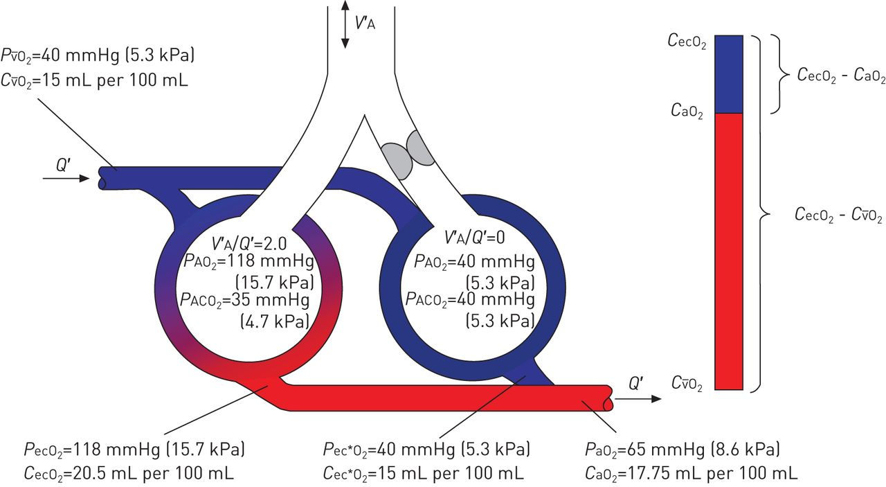 Gas Exchange And Ventilationperfusion Relationships In The Lung