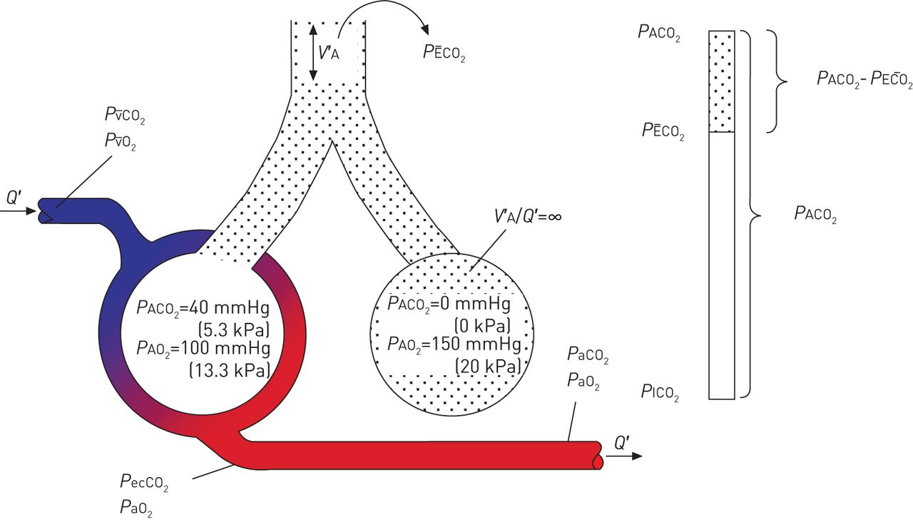 Gas Exchange And Ventilationperfusion Relationships In The Lung Diagram Of Inhalation Exhalation Mechanism Breathing Download Figure