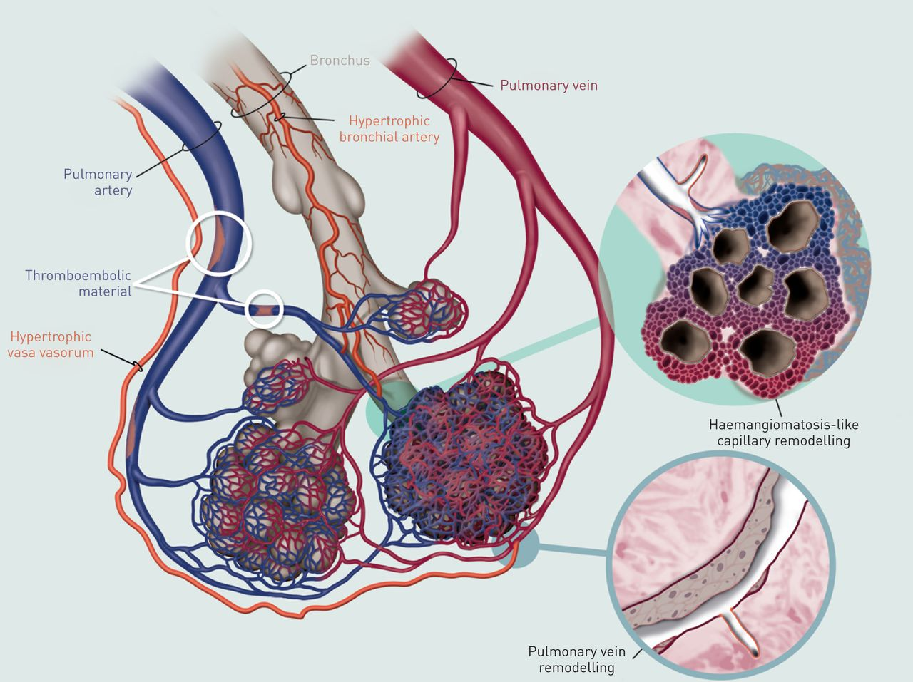 microvascular disease in chronic thromboembolic pulmonary hypertension  a role for pulmonary
