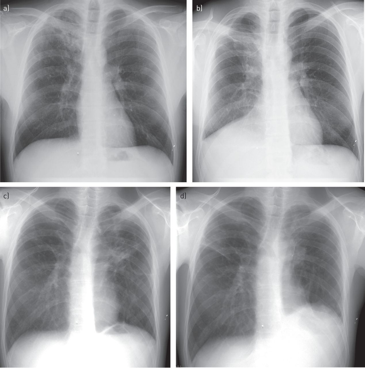 Are there spots on the lungs A few words about tuberculosis