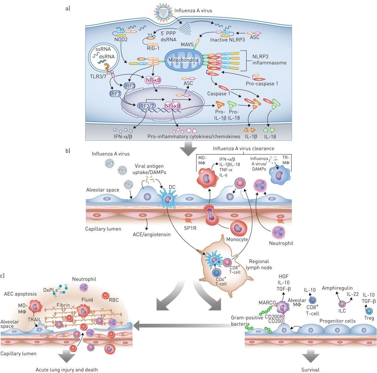 Influenza virus-induced lung injury: pathogenesis and ...  Influenza virus...