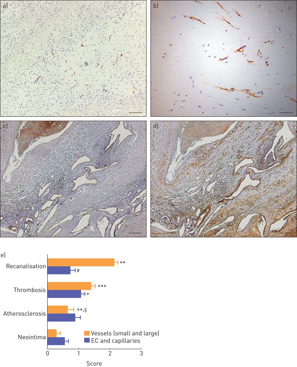Contribution of inflammation and impaired angiogenesis to