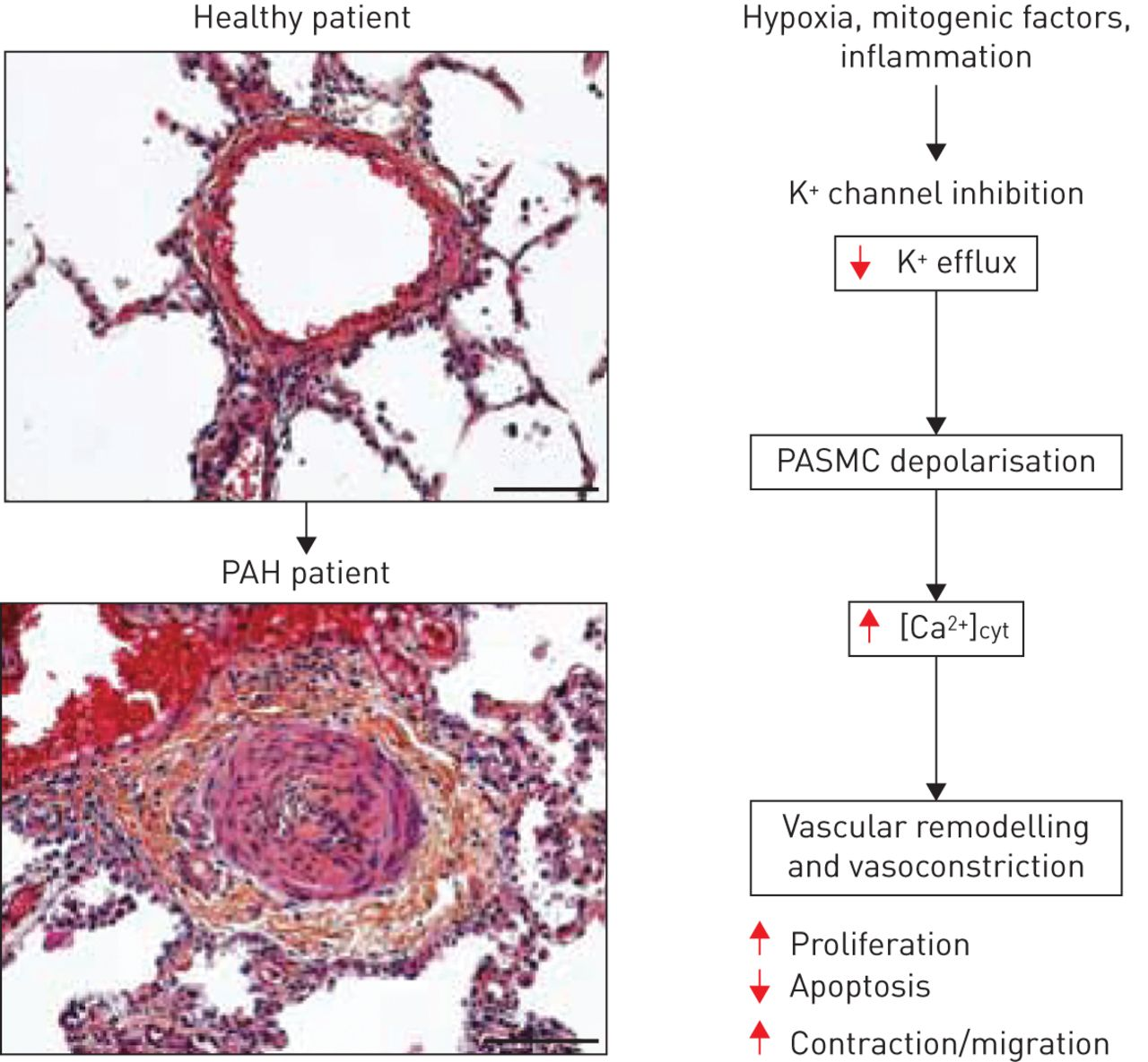 Potassium channels in pulmonary arterial hypertension | European