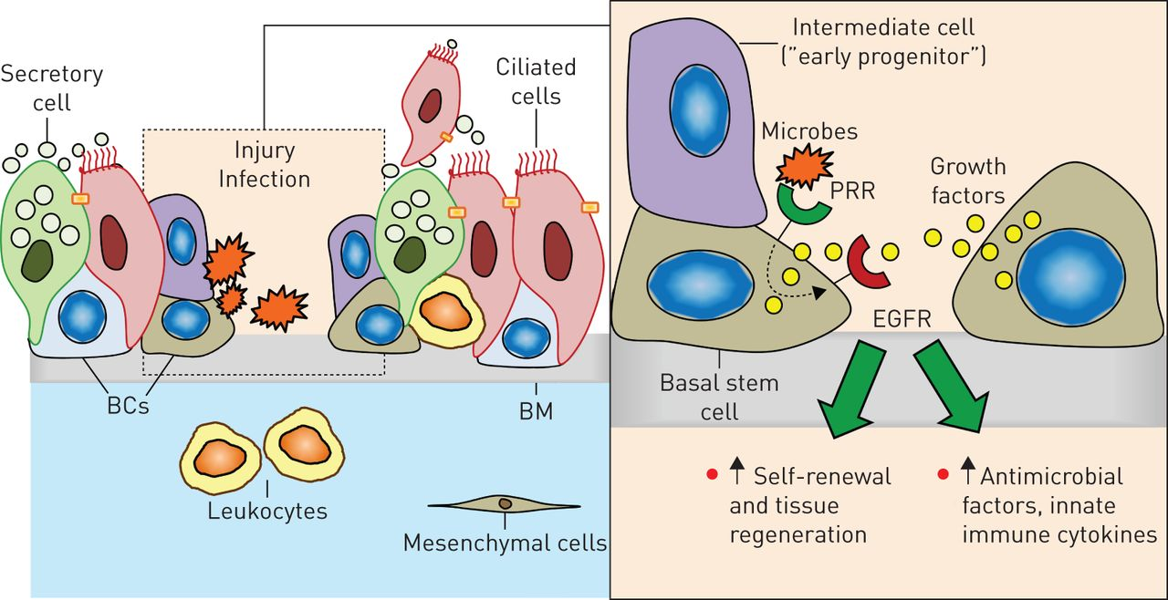 AİRWAY CELLS ile ilgili görsel sonucu