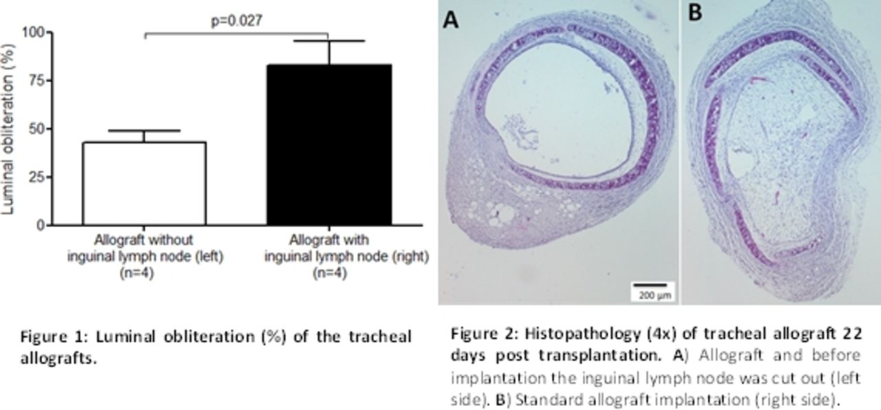The role of secondary lymphoid tissue in airway obliteration