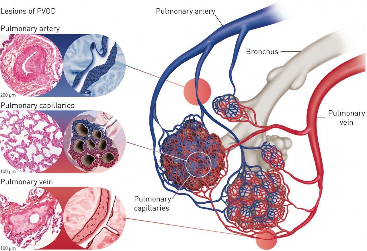 Pulmonary Veno Occlusive Disease European Respiratory Society Anatomy Of A Short Circuit Open Electrical Download Figure In New Tab