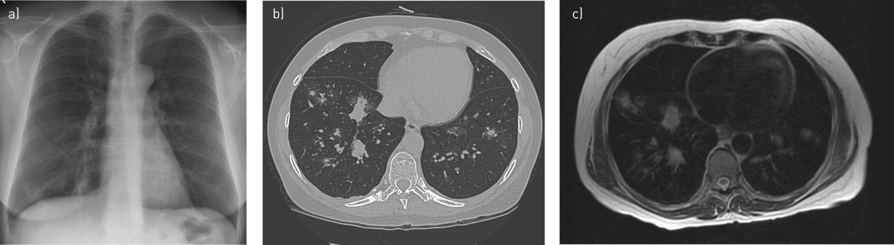 Chest magnetic resonance imaging for pneumonia diagnosis in