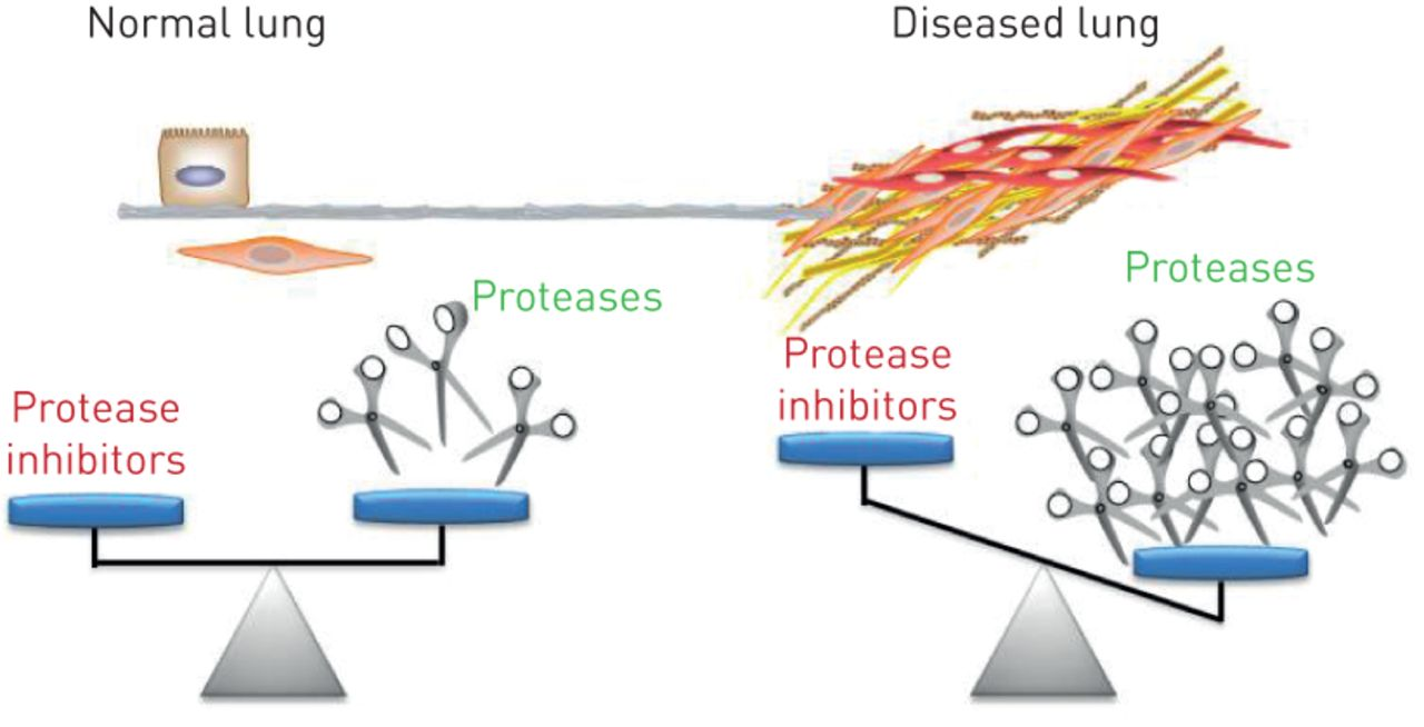 Protean proteases: at the cutting edge of lung diseases | European