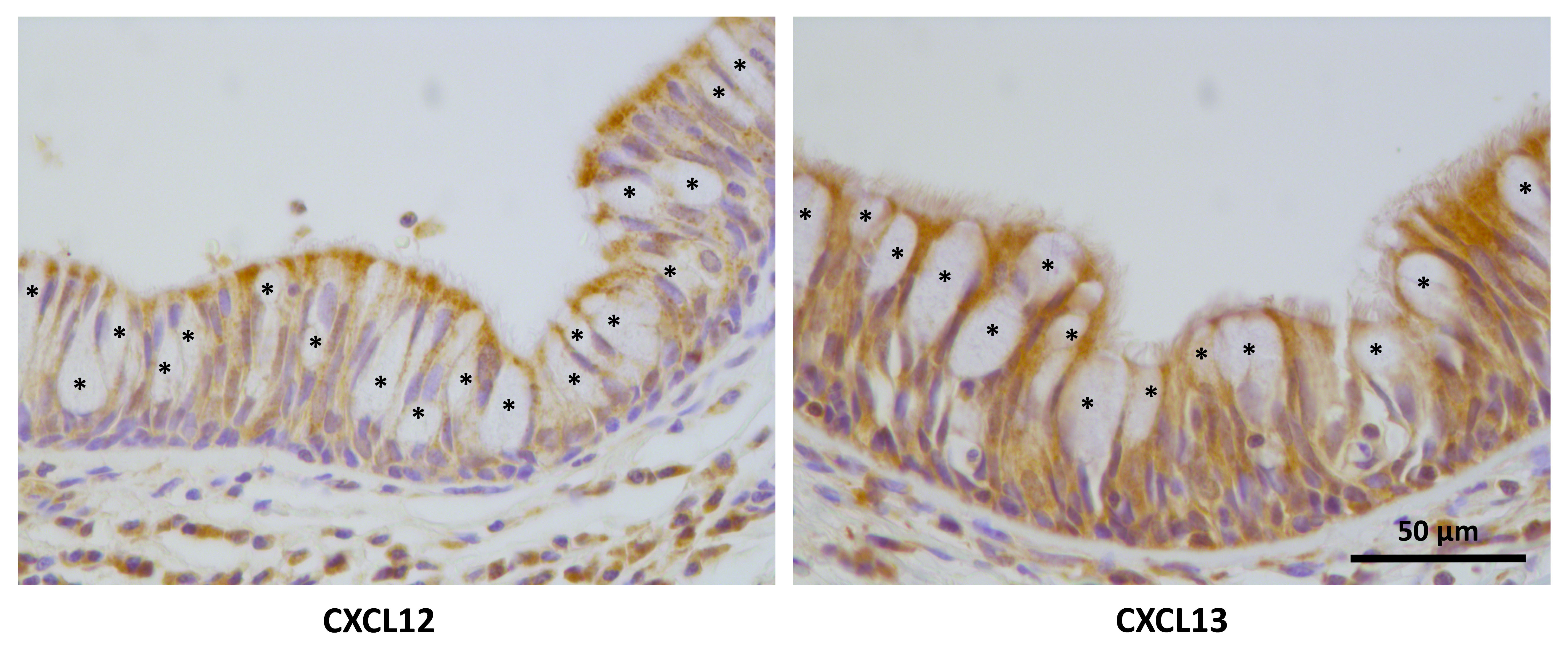 Bacteria-driven peribronchial lymphoid neogenesis in bronchiectasis ...