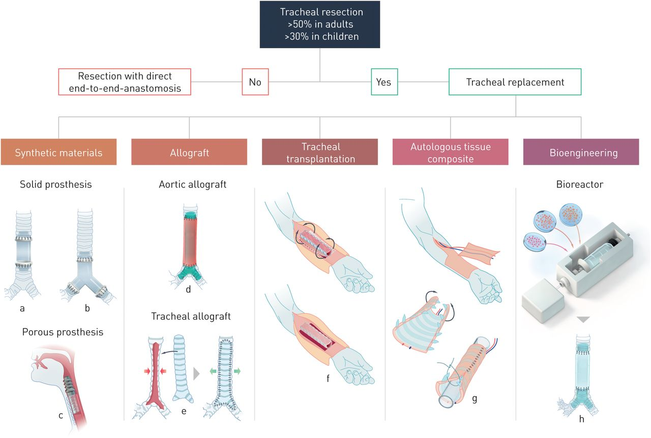 Tracheal replacement european respiratory society download figure pooptronica Images