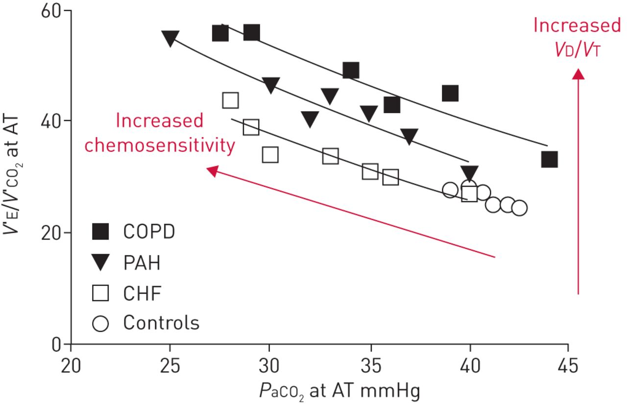 The great breathlessness of cardiopulmonary diseases