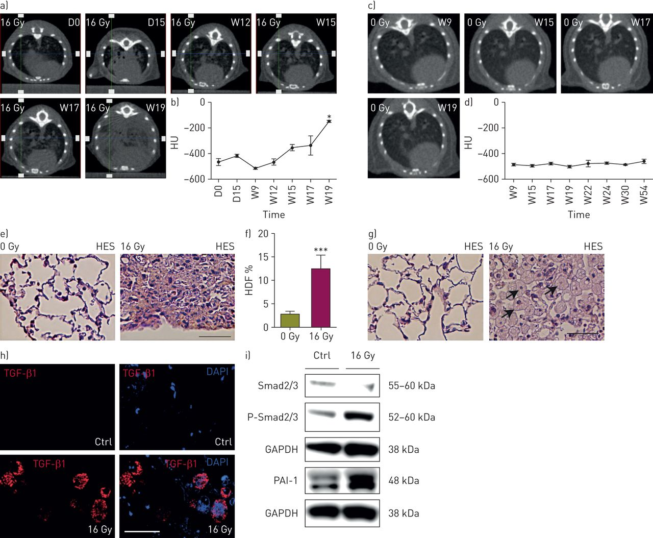 CSF1R inhibition prevents radiation pulmonary fibrosis by