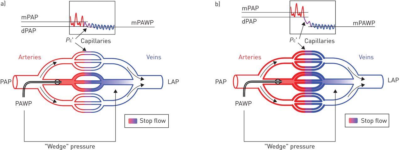 In-depth haemodynamic phenotyping of pulmonary hypertension