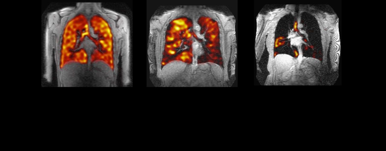 Assessing regional lung ventilation with 19F-MRI of inhaled
